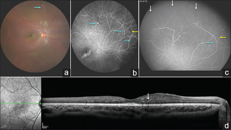 Figure 1: Fundus photography of the right eye demonstrated tiny parafoveal pinpoint exudation and subtle vascular misdirection with looping along the superonasal periphery [Fig. 1a, blue arrow]. Fluorescein angiography demonstrated superonasal peripheral nonperfusion (white arrows) with tortuous looping vessels, telangiectasia (yellow arrows), and light bulb microaneurysms (blue arrows) [Figure 1]b, [Figure 1]c. Optical coherence tomography confirmed the presence of intraretinal macular exudation (white arrow) and mild, noncystoid edema in the papillomacular bundle [Figure 1]d