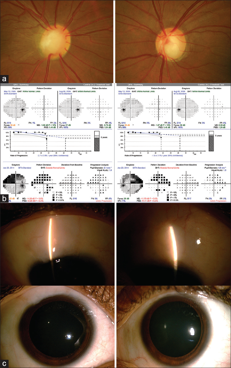 Figure 1: (a) Color fundus photographs showing medium-sized disc in both eyes, with 0.8 CDR, inferior rim thinning and pallor, and 0.8 CDR with inferior notch and diffuse NFL loss inferiorly in left eye. (b) Glaucoma progression analysis (GPA) indicates progression from normal visual fields to superior arcuate scotoma in both eyes. (c) The anterior segment photographs showing diffuse bleb superiorly with pharmacologically dilated pupils and well-formed anterior chamber in both eyes