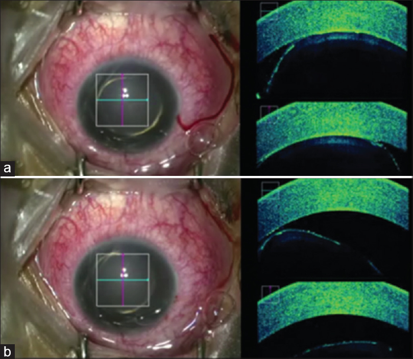 Figure 3: Microscope integrated OCT (MiOCT) image showing (a) Lenticulo-corneal adhesion before commencement of surgery; (b) Release of lenticulo-corneal adhesion intra-operatively under MiOCT guidance