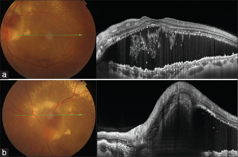 Figure 2: (a) Baseline OCT showing large serous macular detachment with intraretinal hard exudates and drusenoid drusenoid pigment epithelial detachments (PEDs). (b) OCT of superior peripapillary region showing the large hyperreflective subretinal lesion continuous with the ONH margin