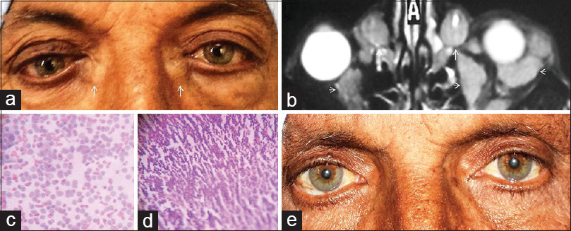 Figure 1:(a) Bilateral lacrimal sac region swellings (white arrows), right inferior dystopia, and left inferior orbital sulcus fullness. (b) MRI orbits (axial T2-weighted) shows bilateral lacrimal sac wall thickening (white arrows) and iso-intense orbital masses (arrowheads). (c) Cytology (10×) shows small round blue cells with coarse chromatin and scanty cytoplasm. (d) Sheets of round blue cells suggestive of lymphomatous malignancy (10×, H and E). (e) After chemotherapy, bilateral lacrimal sac regions and the right eye appears normal