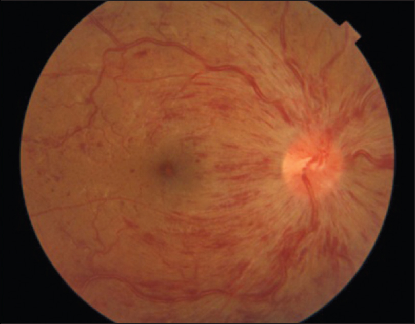 Figure 1: Fundus photo showing central retinal vein occlusion in right eye
