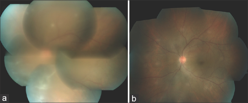 Figure 2: A 30-year-old male with bilateral panuveitis associated with Behcet's disease presented with active bilateral panuveitis and severe vitritis was started on adalimumab showed significant reducation of vitritis and other clinical parameters within 6 weeks