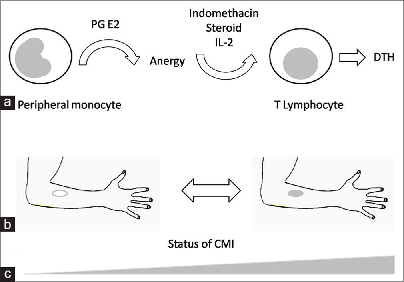 Figure 1: Sarcoid anergy, tuberculin test, and the status of cell-mediated immunity (CMI). (a) Sarcoid anergy is mediated through PGE2 and deficit of IL-2; it is reversed with Indomethacin, steroids, and exogenous IL-2 leading to delayed type (IV) hypersensitivity (DTH); (b) it shows the presence and size of the induration which in turn reflects (c) the status of CMI against the mycobacterial antigens