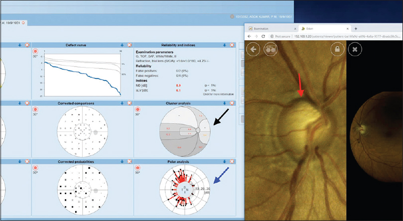 Figure 9: Simultaneous comparison of two modalities on a PC desktop screen. Functional polar analysis of the superior visual field loss (black arrow) compared with structural superior neuro-retinal rim defect (red arrow)