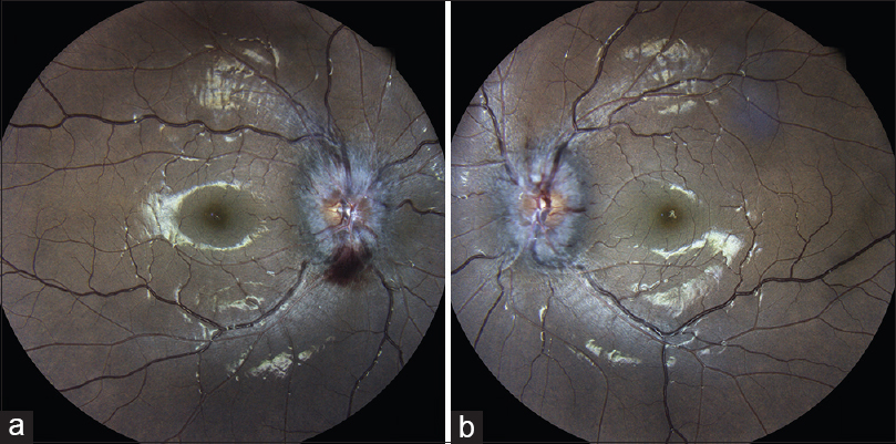 Figure 1: Colour fundus photograph. (a) Right eye showing papilledema with disc haemorrhage. (b) Left eye showing papilledema